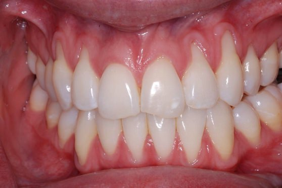 Receding-Gums Grow-Back-